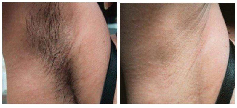 Cost facial hair hair hair laser removal removal removal wax