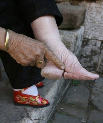 Cripple feet sexy girls . Porn Pics & Moveis. Comments: 1